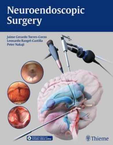 neuroendoscopic-surgery