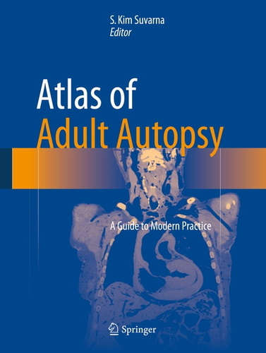 atlas-of-adult-autopsy