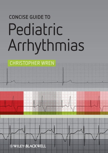 concise-guide-to-pediatric-arrhythmias