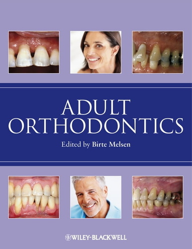 adult-orthodontics