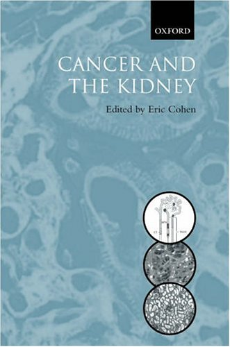cancer-the-kidney