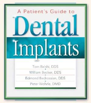 patient-guide-to-dental-implants-a